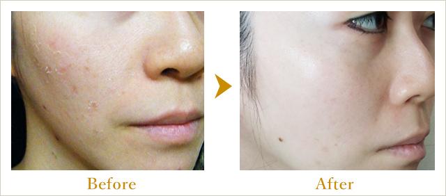 サロンオーナー小林の施術による肌の変化の写真